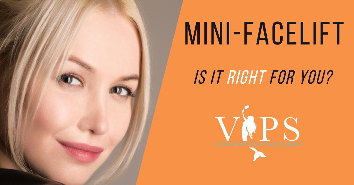 mini-facelift: is it right for you?