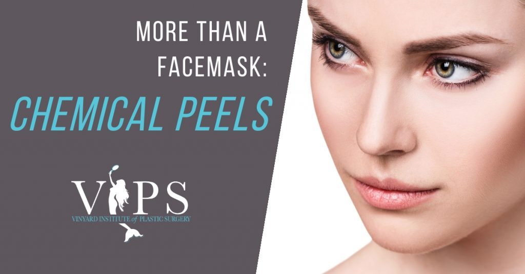 more than a facemask: chemical peels