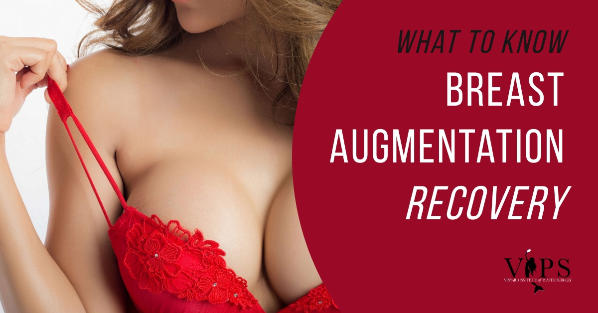 what to know: breast augmentation recovery
