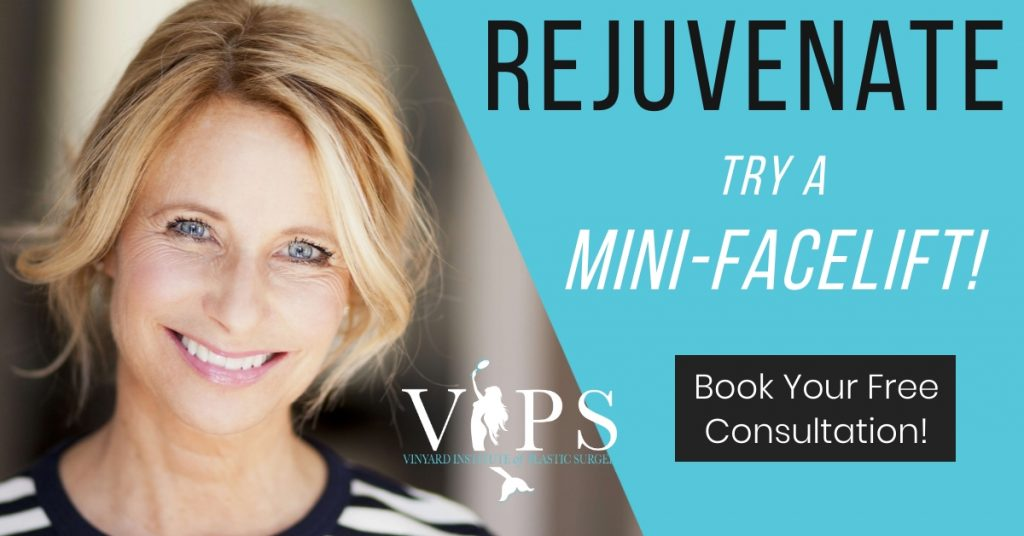 rejuvenate: try a mini-facelift