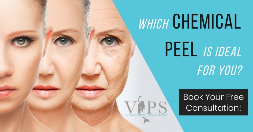 which chemical peel is ideal for you?