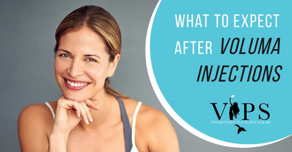 what to expect after voluma injections