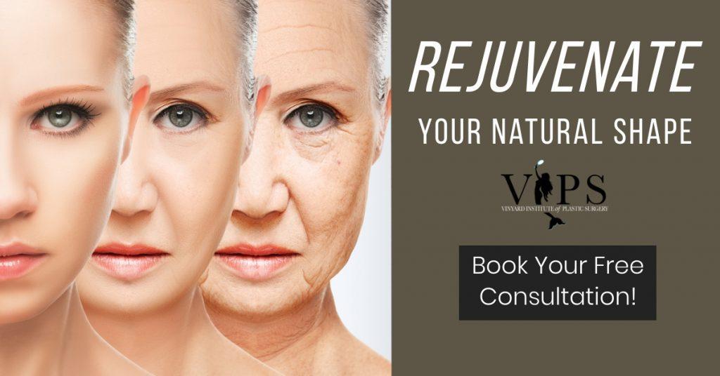 rejuvenate your natural shape
