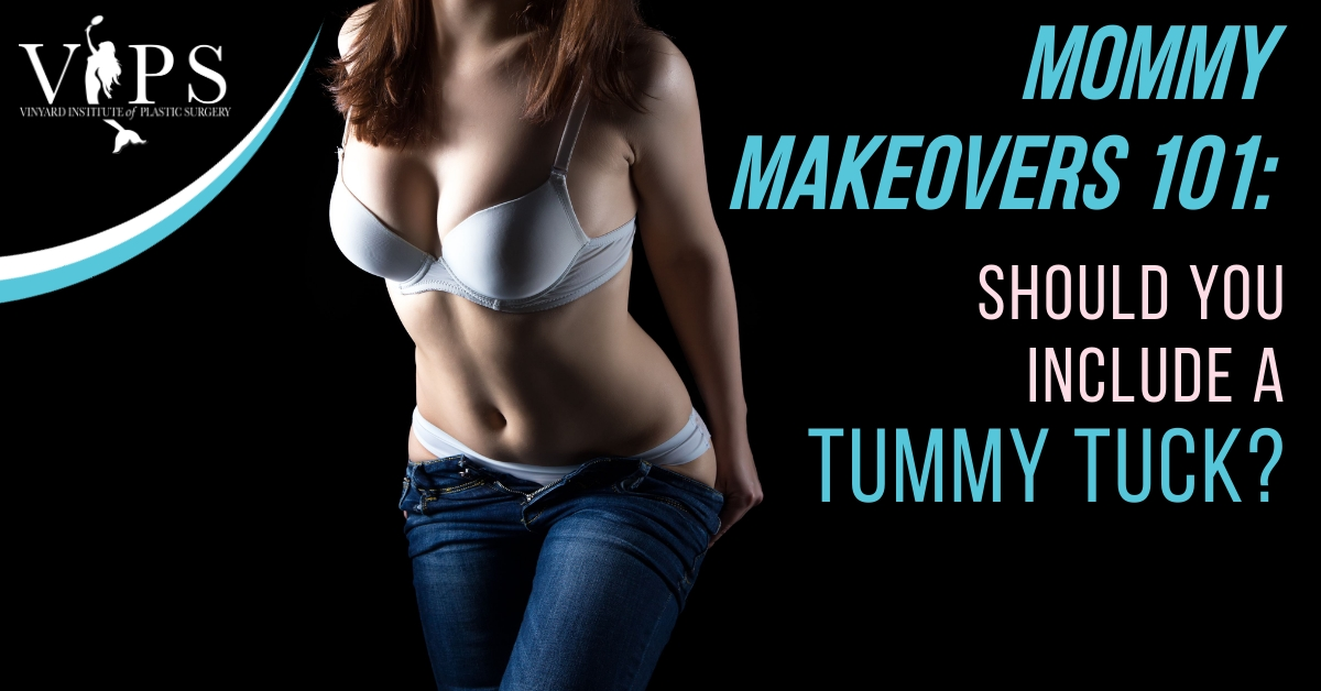 Mommy Makeover 101 - Tummy Tuck Procedure
