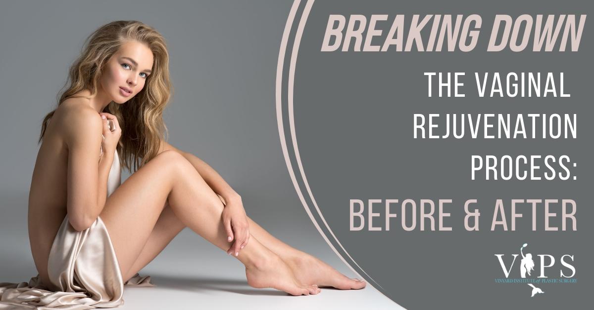 Vaginal Rejuvenation before and after
