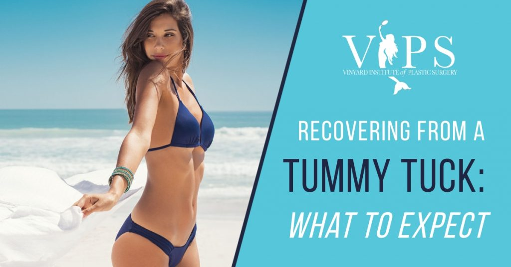 How tummy tuck works