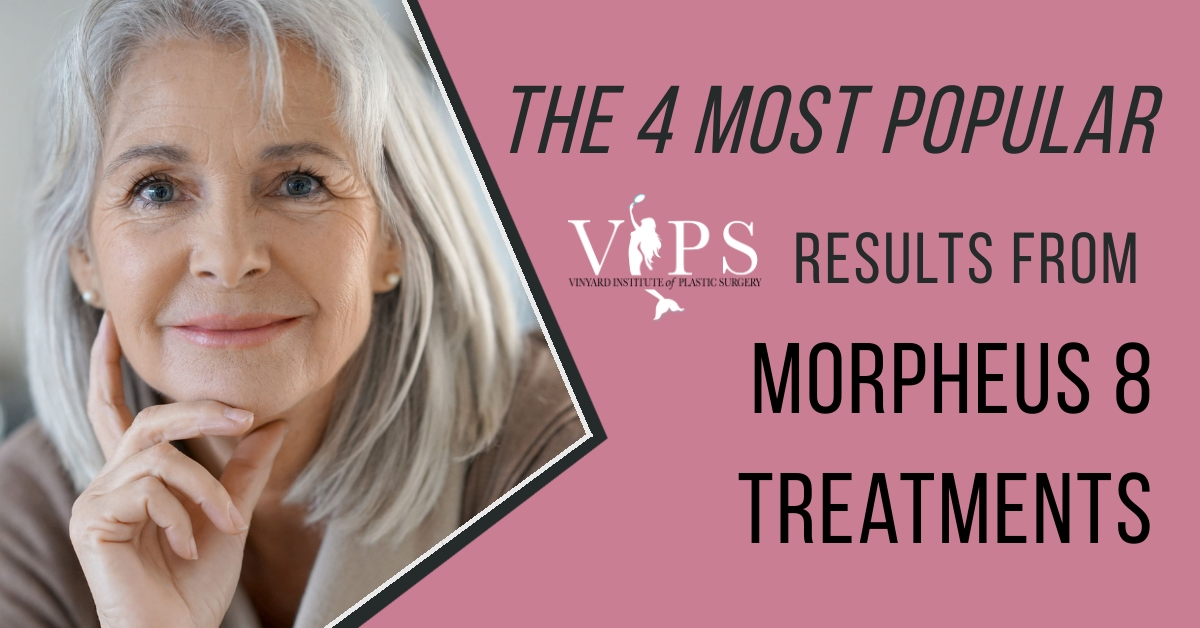 The 4 Most Popular Results from Morpheus8 Treatments