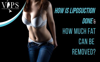 How Is Liposuction Done & How Much Fat Can Be Removed?