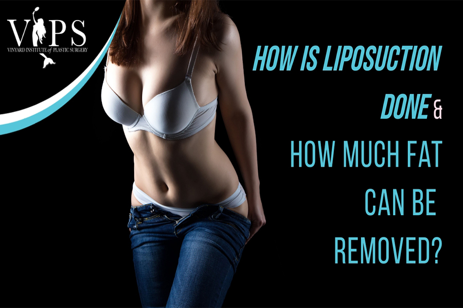 How is Liposuction done