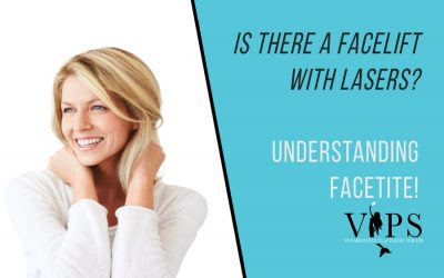 Is There A Facelift With Lasers? Understanding FACEtite