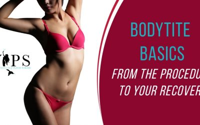 BODYtite Basics: From The Procedure to Your Recovery