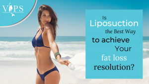 Is Liposuction the Best Way to Achieve Your Fat Loss Resolution?