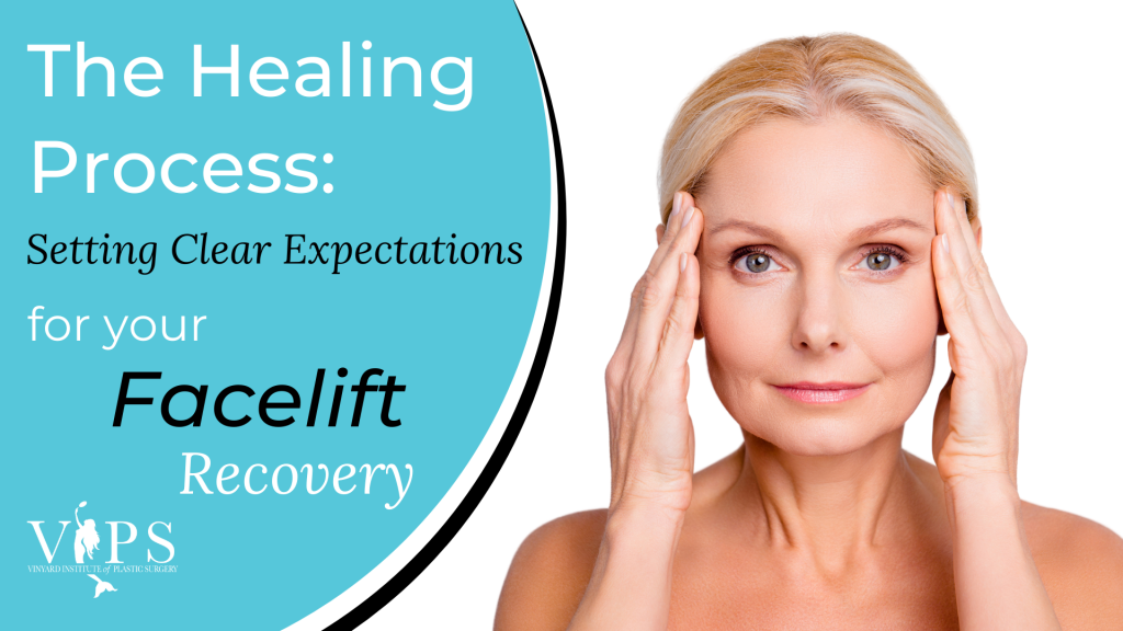 The Healing Process: Setting Clear Expectations for Your Facelift Recovery