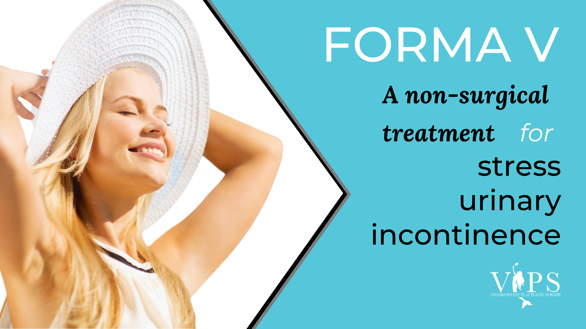 FORMA V: A Non-Surgical Treatment for Stress Urinary Incontinence