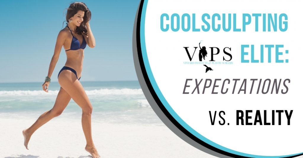 CoolSculpting Elite Expectations vs. Reality