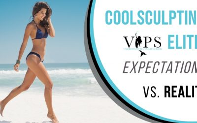 CoolSculpting Elite: Expectations vs. Reality