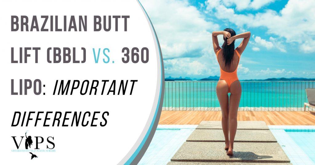 Brazilian Butt Lift (BBL) vs. 360 Lipo Important Differences