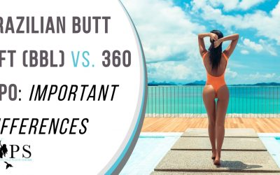 Brazilian Butt Lift (BBL) vs. 360 Lipo: Important Differences