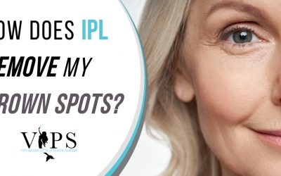 How Does IPL Remove My Brown Spots?