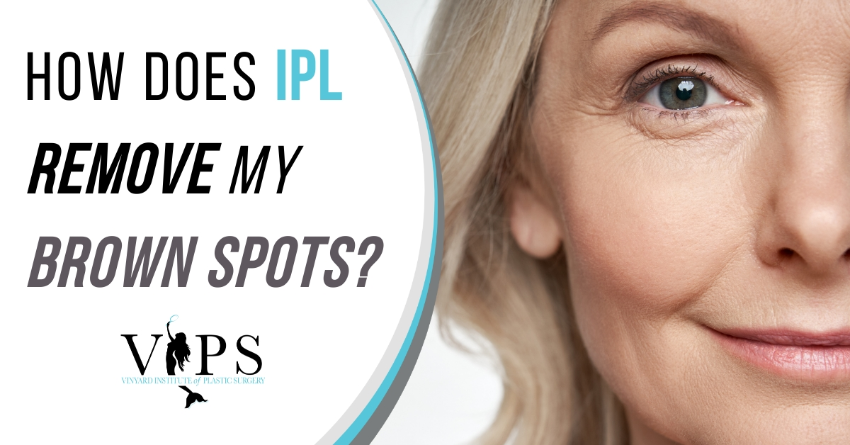 How Does IPL Remove My Brown Spots