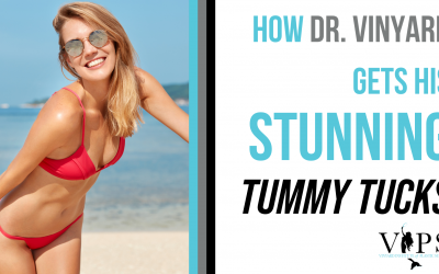 How Dr. Vinyard Gets His Stunning Tummy Tuck Results