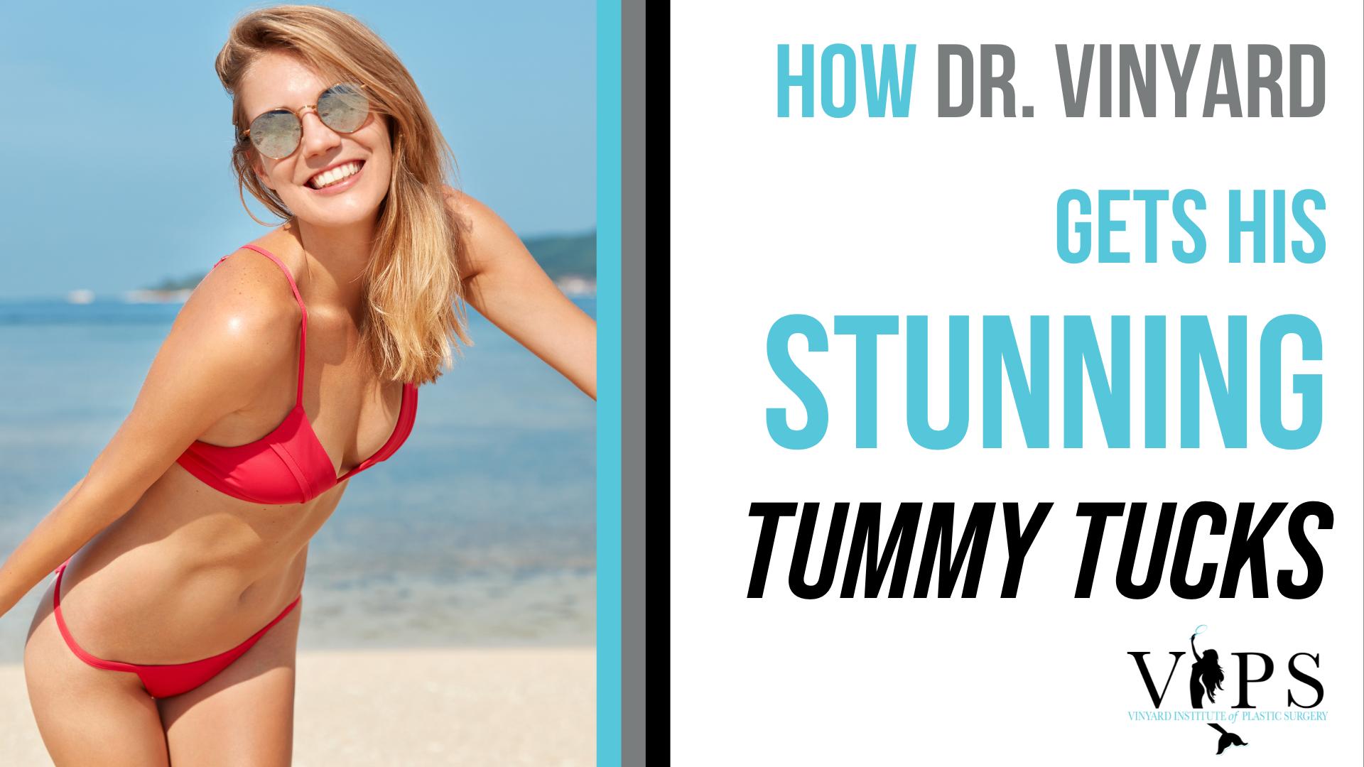 How Dr. Vinyard Gets His Stunning Tummy Tucks