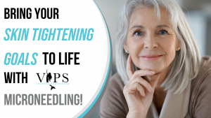 Bring Your Skin Tightening Goals to Life with Microneedling