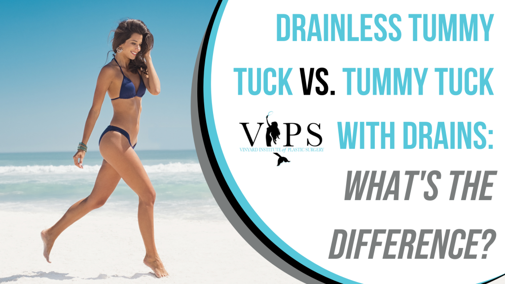 Drainless Tummy Tuck vs. Tummy Tuck With Drains What's The Difference