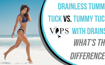 Drainless Tummy Tuck vs. Tummy Tuck With Drains: What's The Difference?