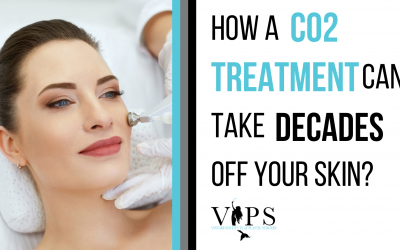 How A CO2 Treatment Can Take Decades Off Your Skin!
