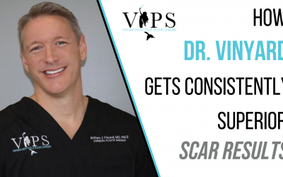 How Dr. Vinyard Gets Consistently Superior Scar Results
