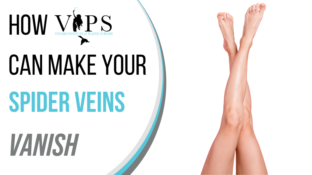 How VIPS Can Make Your Spider Veins Vanish