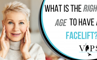 What Is The Right Age To Have A Facelift?